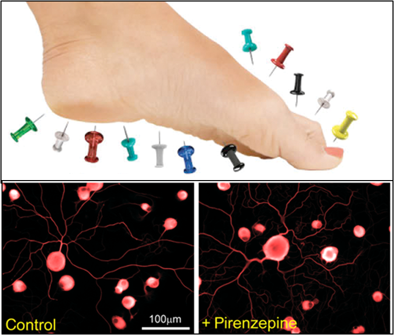 Potential new treatment pathway for peripheral neuropathy