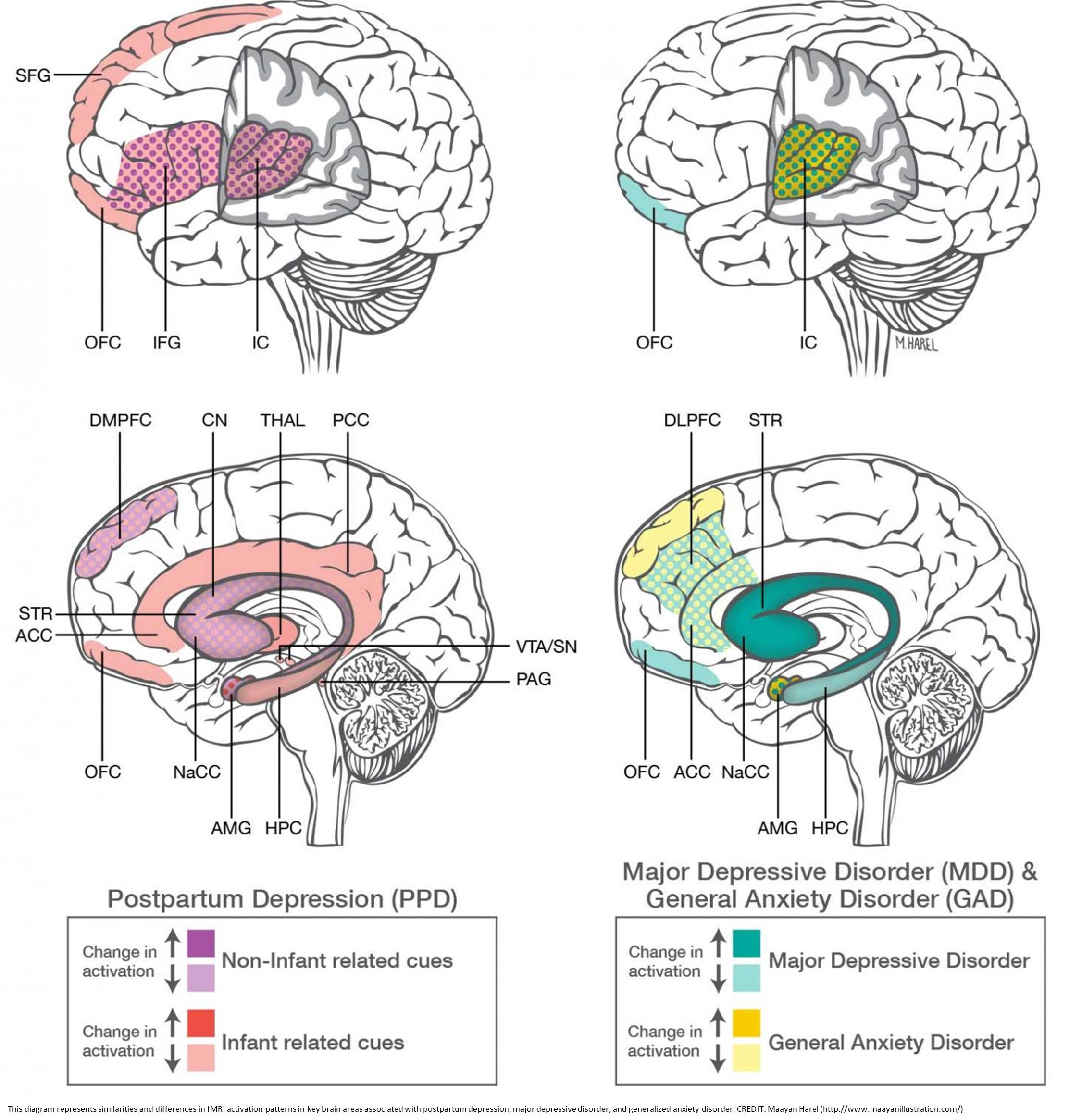 Postpartum depression & anxiety distinct from other mood disorders