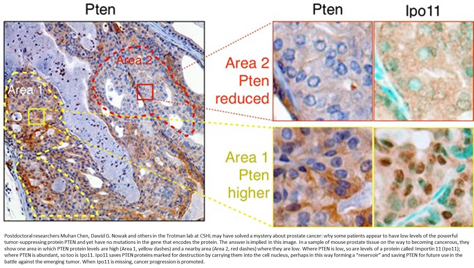 The nuclear transport receptor Importin-11 is a tumor suppressor that maintains PTEN protein