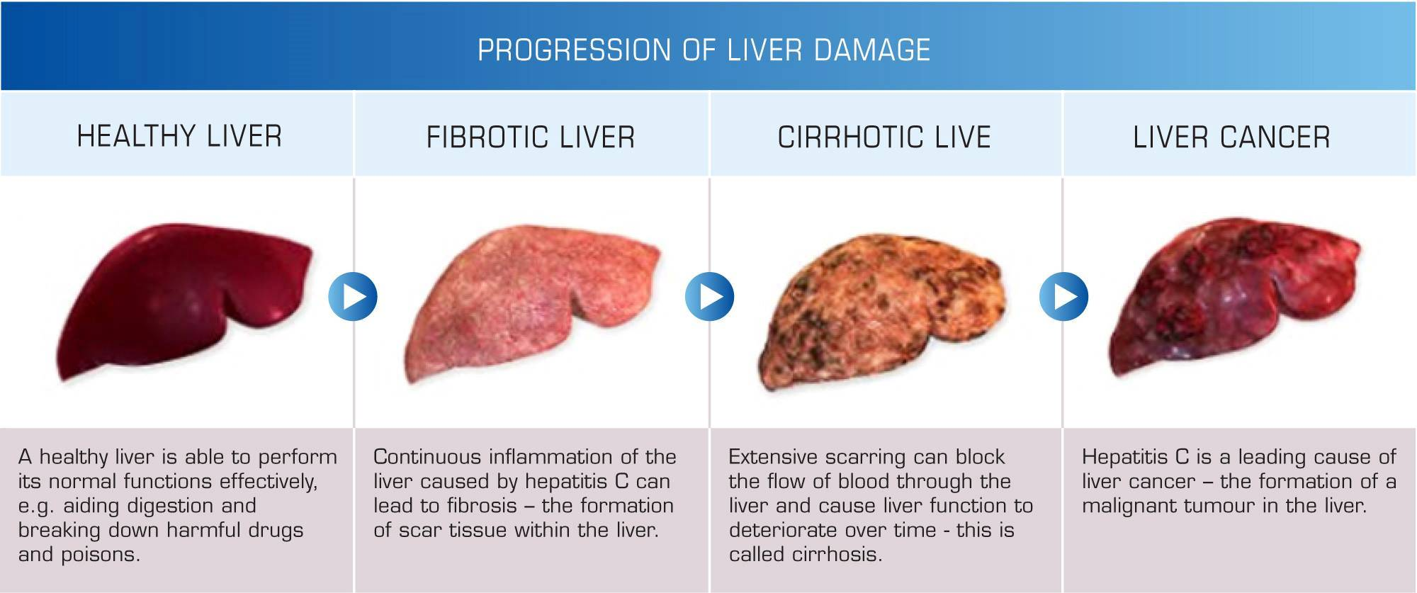 Liver fully recovers from a low protein diet