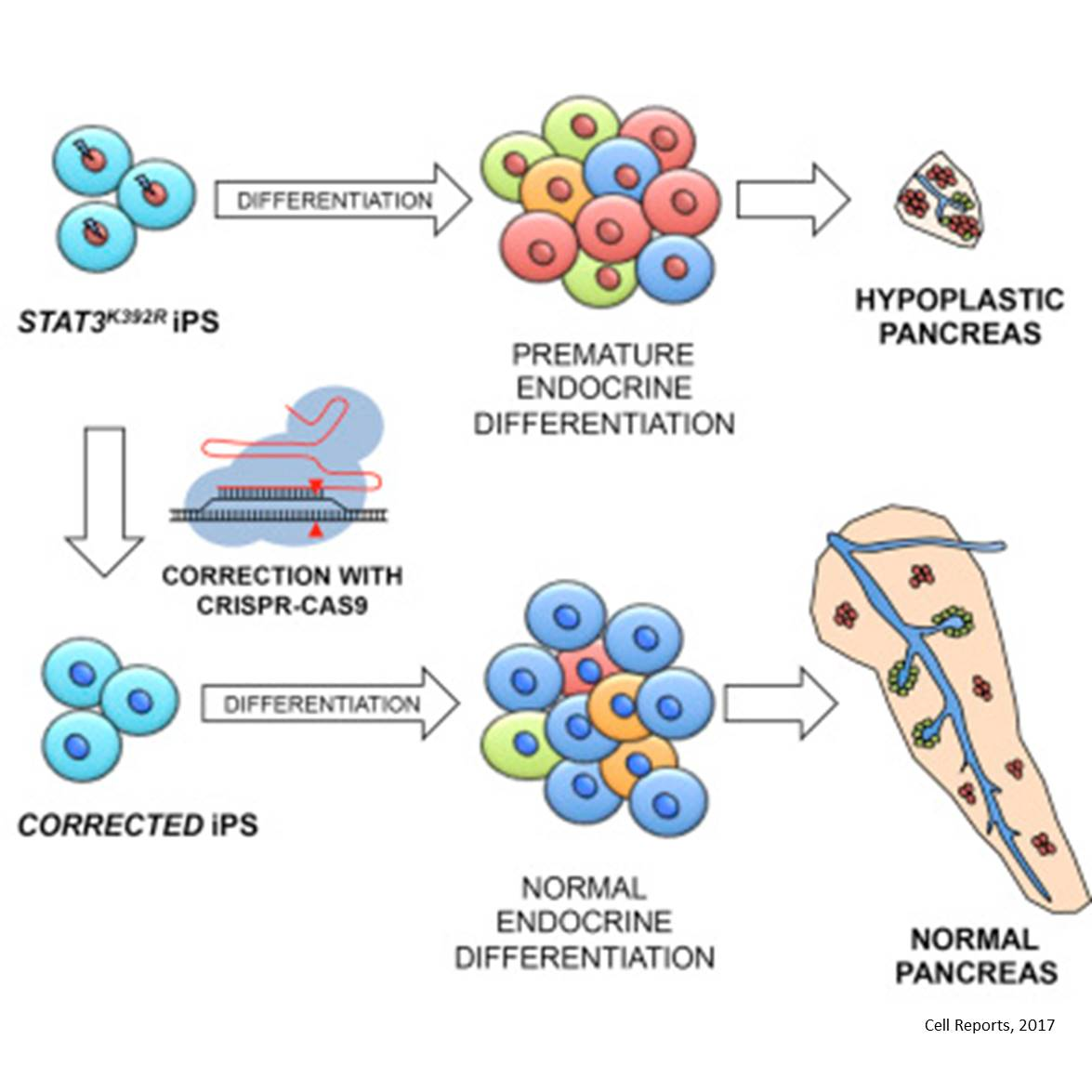 Premature cell differentiation leads to disorders in pancreatic development