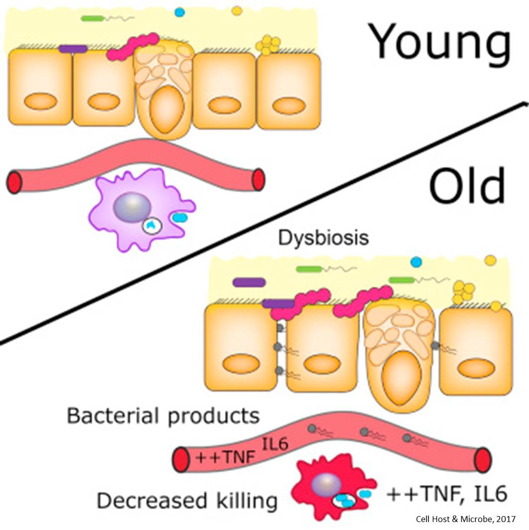 Gut microbes contribute to age-associated inflammation