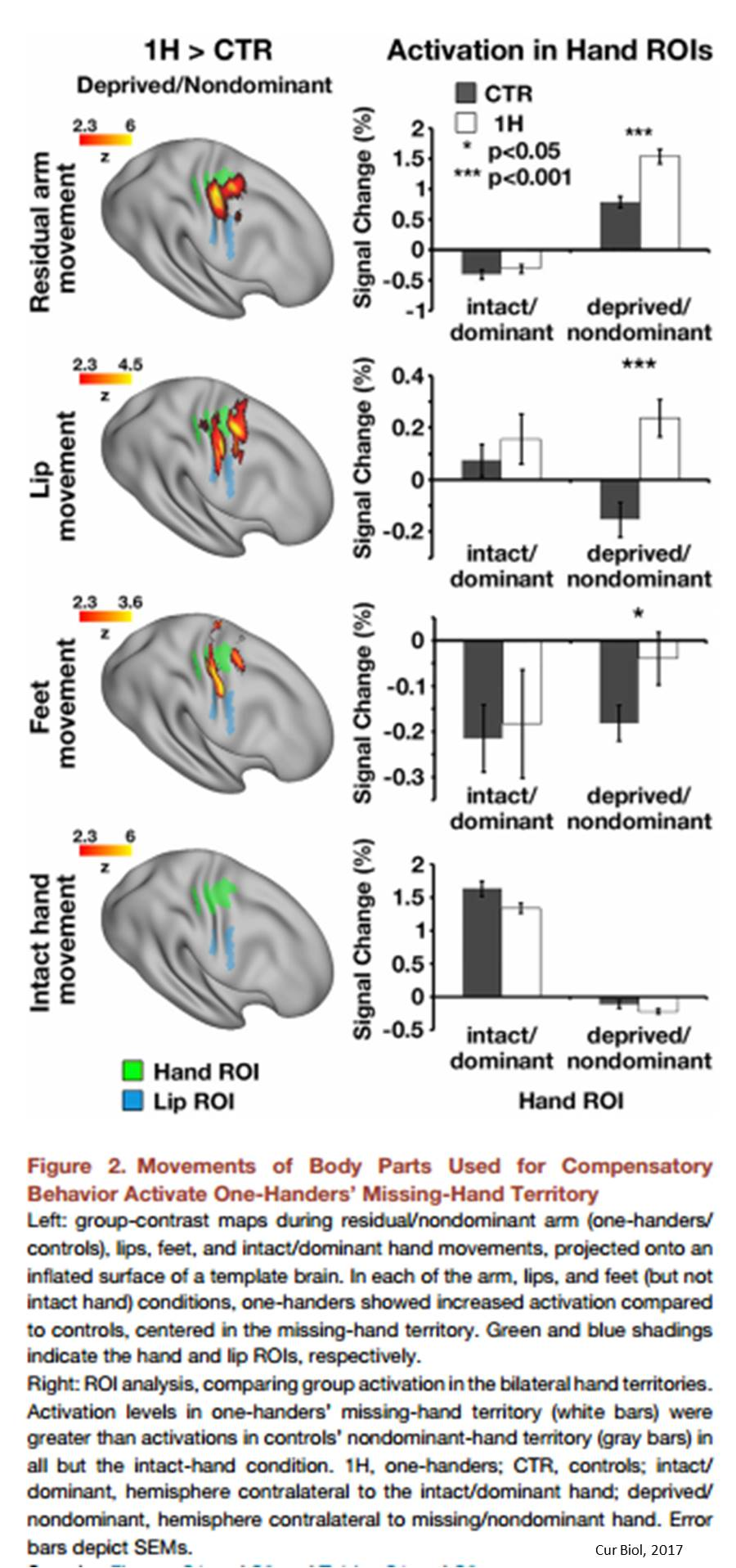 Brains of one-handed people suggest new organization theory