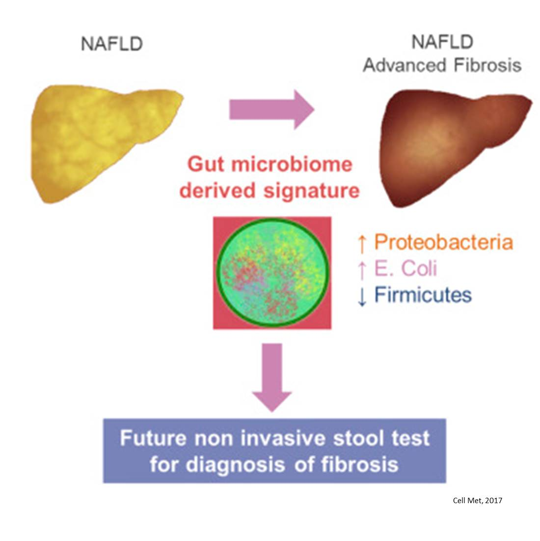 Stool microbes predict advanced liver disease
