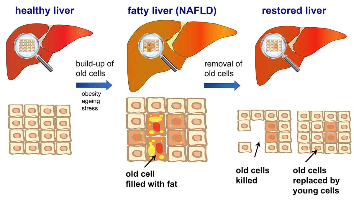 Reversing fatty liver disease!