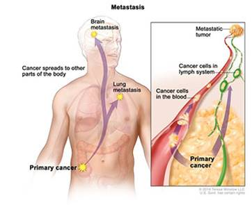 Lymph node metastases may not always be the source of cancer's spread to other organs