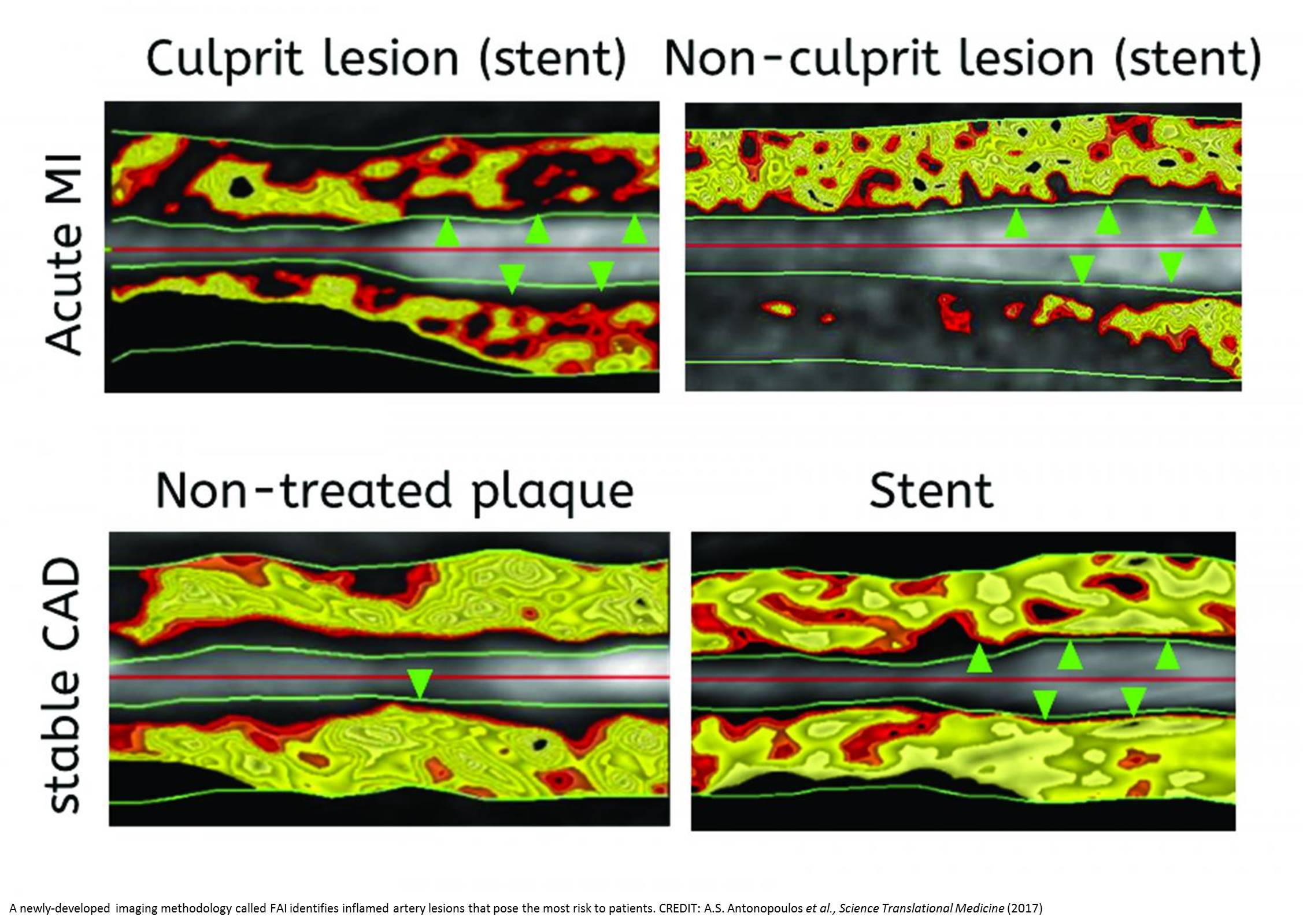 A noninvasive measure to identify dangerous blood vessel plaques