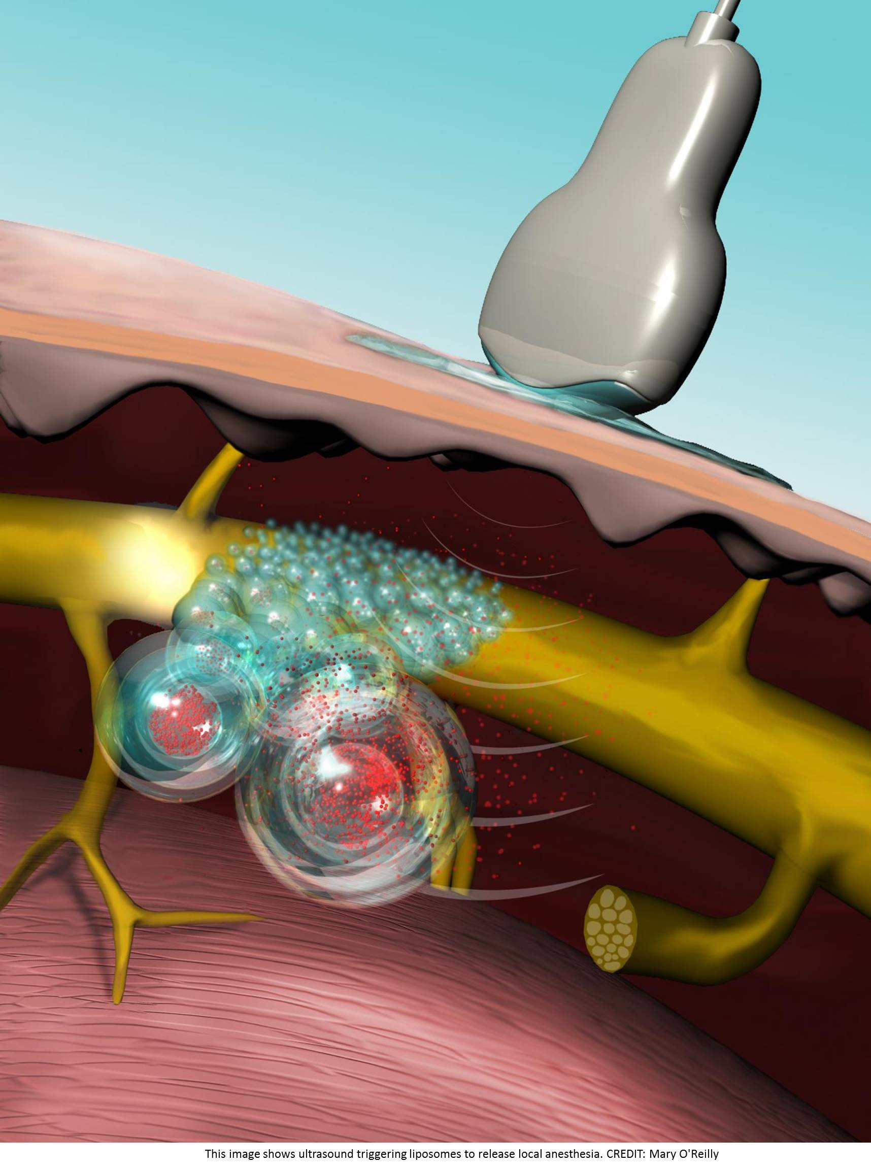 Ultrasound-triggered liposomes for on-demand, local pain relief