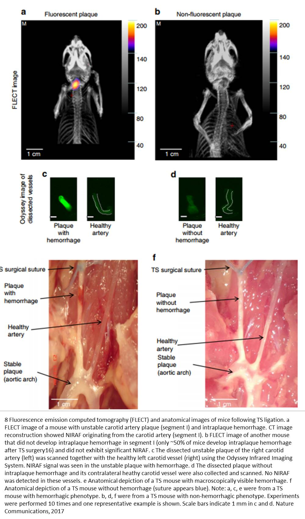 Near-infrared light to identify high-risk arterial plaques