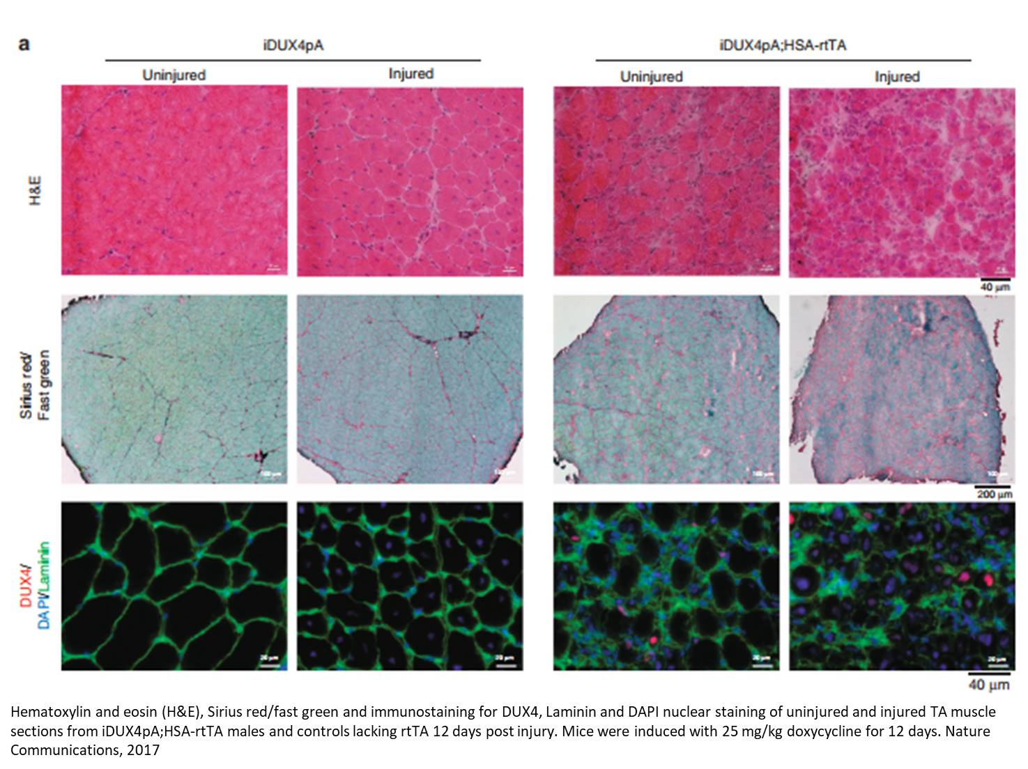 Facioscapulohumeral muscular dystrophy (FSHD) mouse model developed!