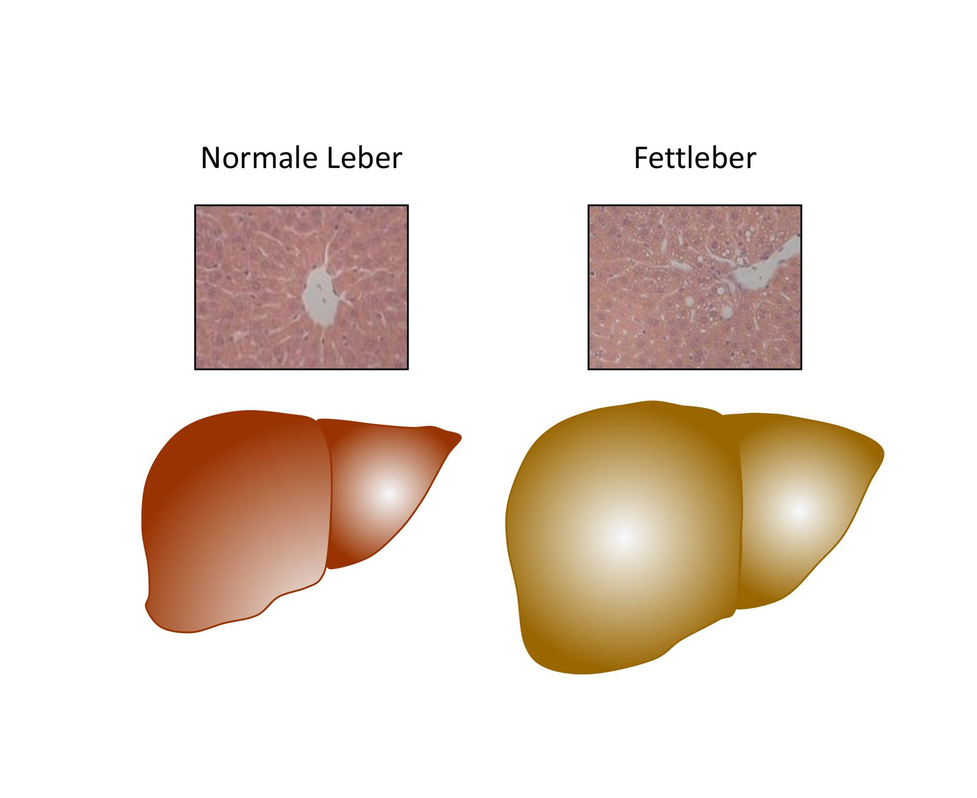 Trigger for fatty liver in obesity