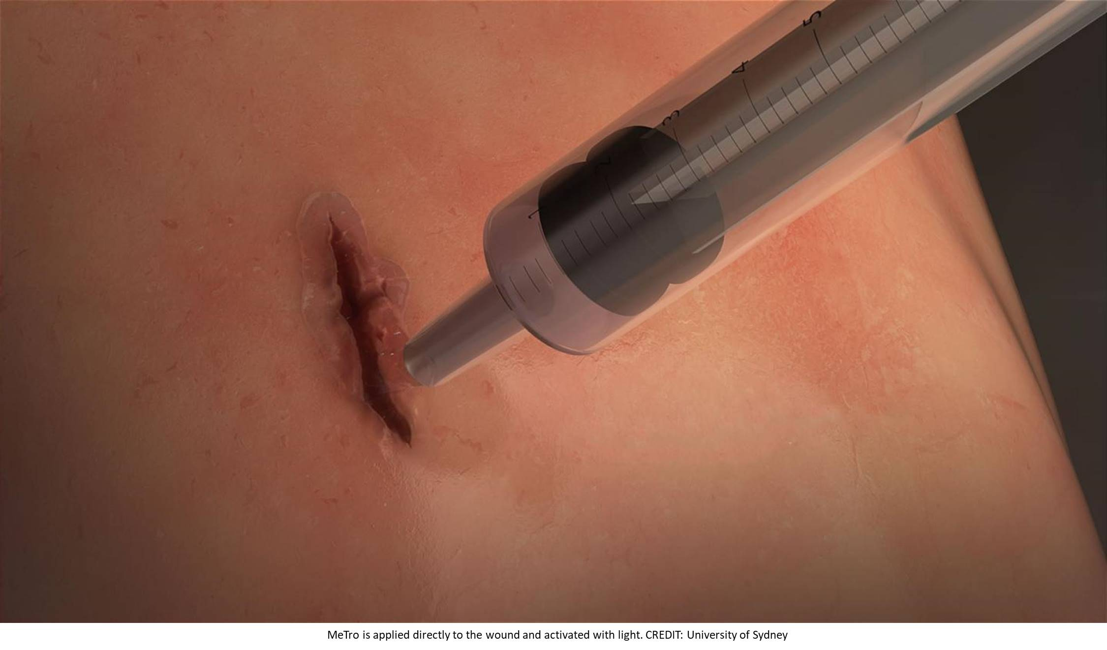 'Squirtable' elastic surgical glue seals wounds in 60 seconds