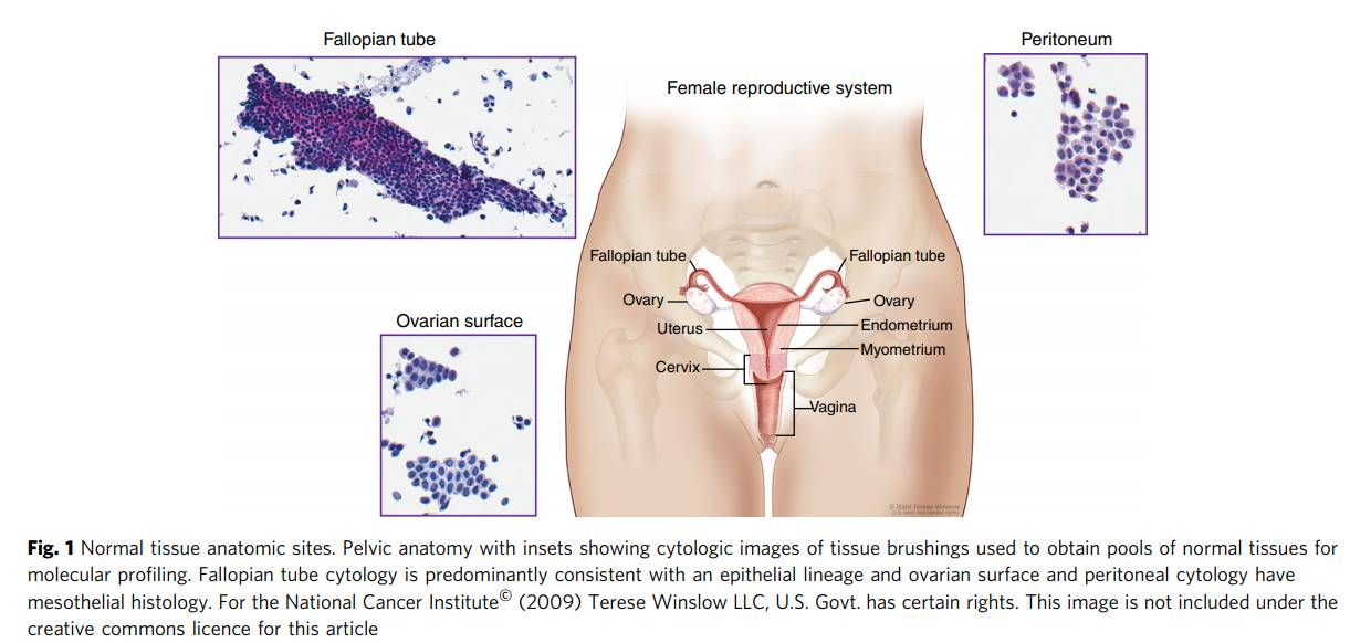 Molecular analysis indicates that ovary is not the origin for all the ovarian cancers!
