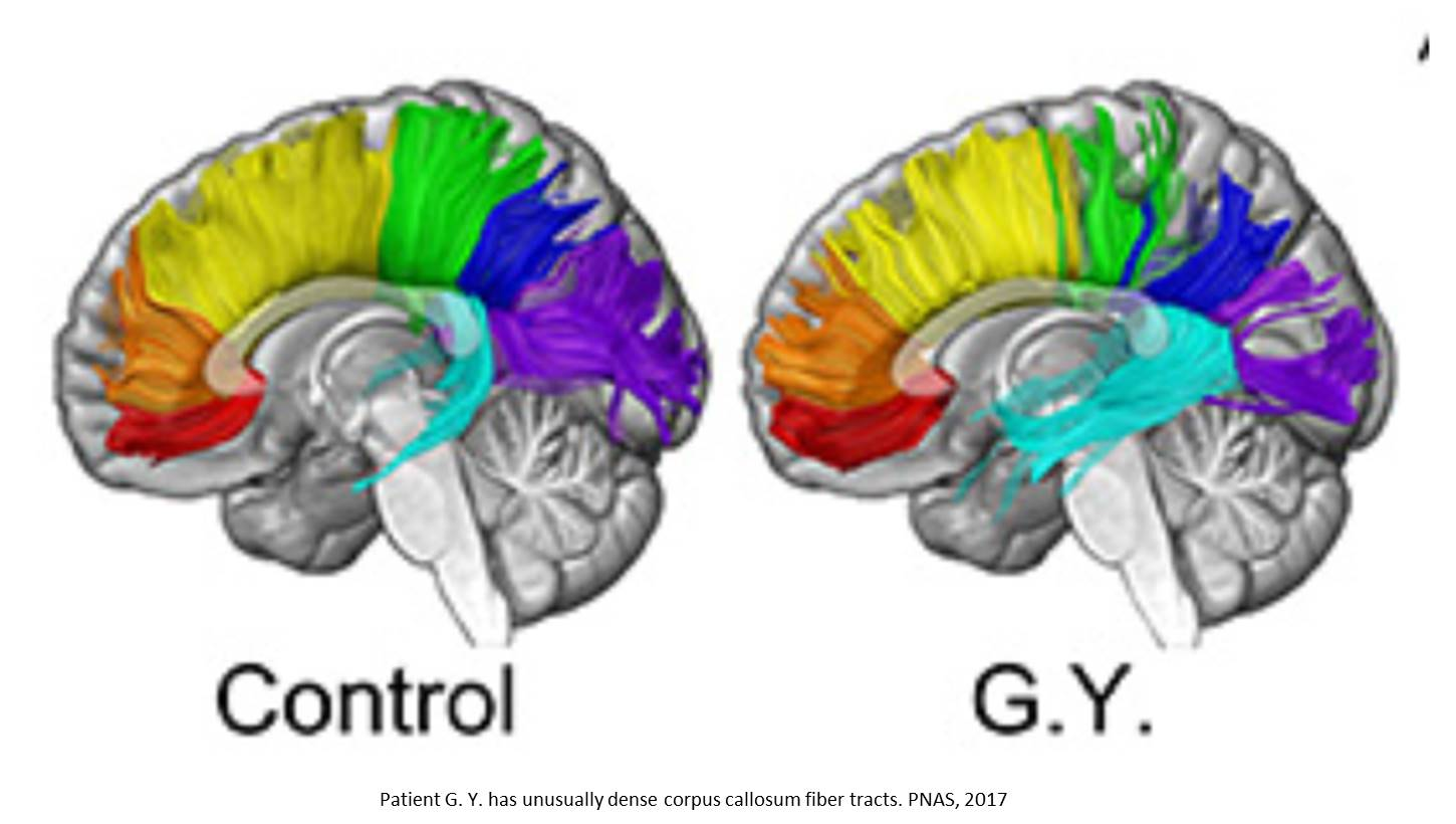 Brain reorganization and response to unseen stimuli in blind people