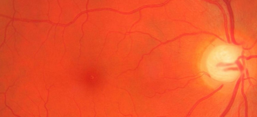 A small peptide blocks abnormal blood vessel growth in retinal disease