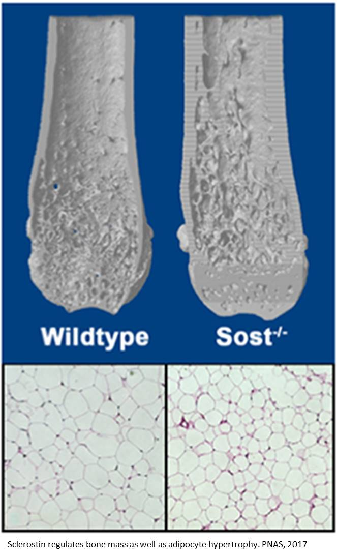 Bone-derived hormone influences adipose tissue in mice