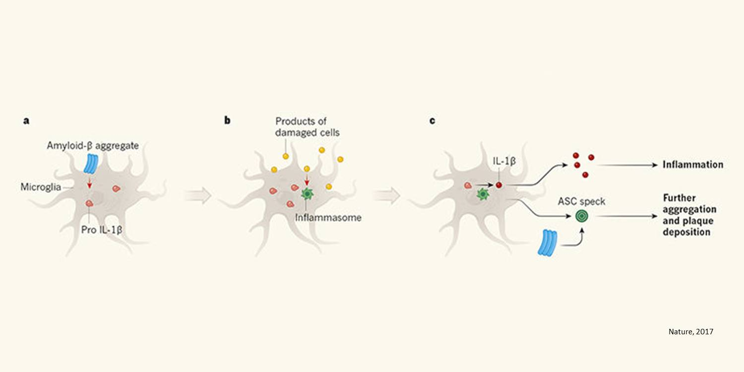 Inflammation drives progression of Alzheimer's