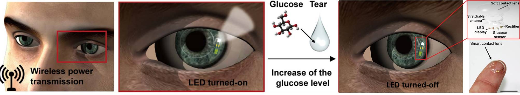 'Smart' contact lenses monitor glucose levels in tears