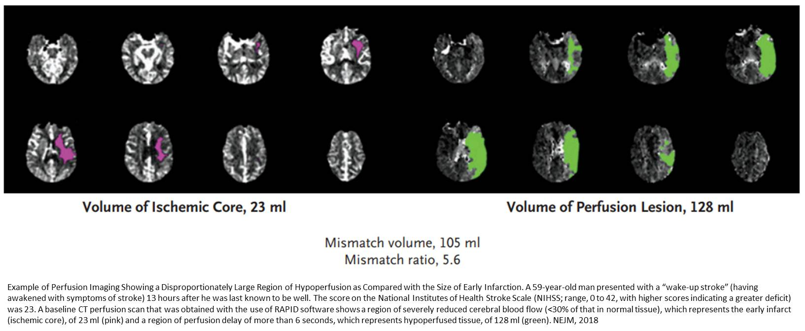 Perfusion brain imaging technology saves more stroke victims