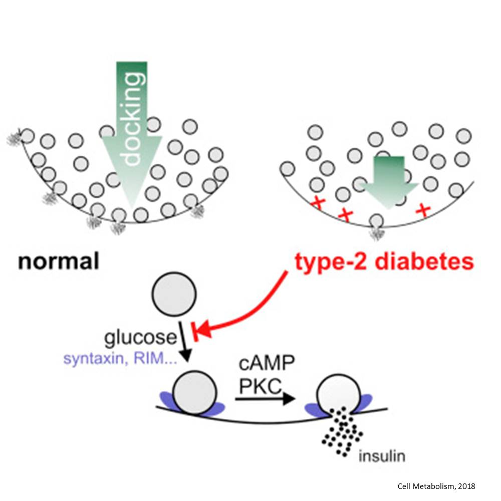 Insulin granule docking to the membrane is decreased in type 2 diabetes