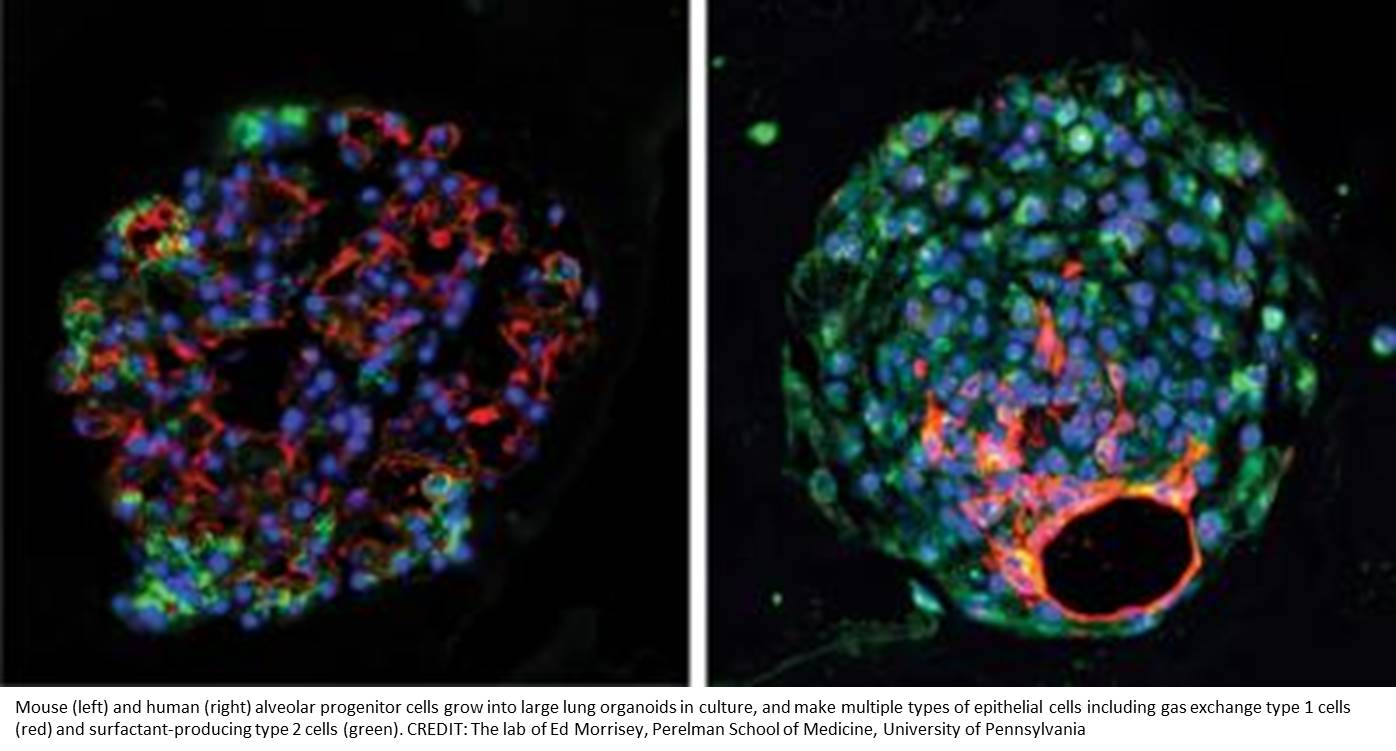 Lung stem cells found