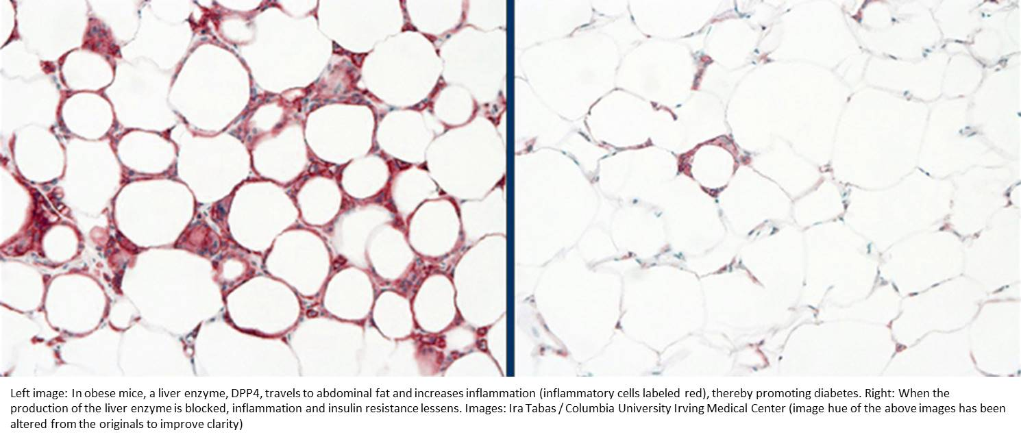 Belly fat promotes diabetes under orders from liver