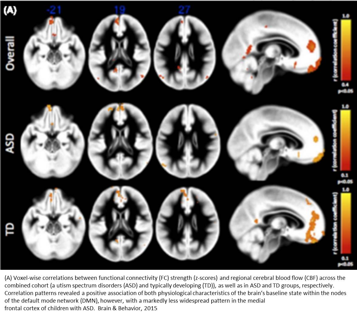 How the 'social brain' is functionally impaired in people with autism