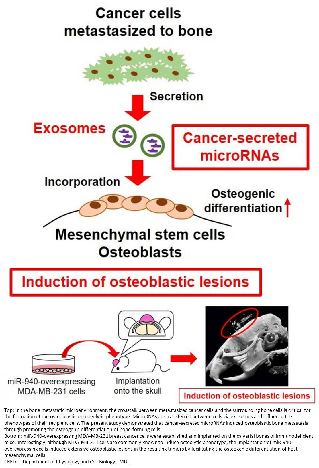 Secreted microRNA alters bone structure in late-stage prostate cancer