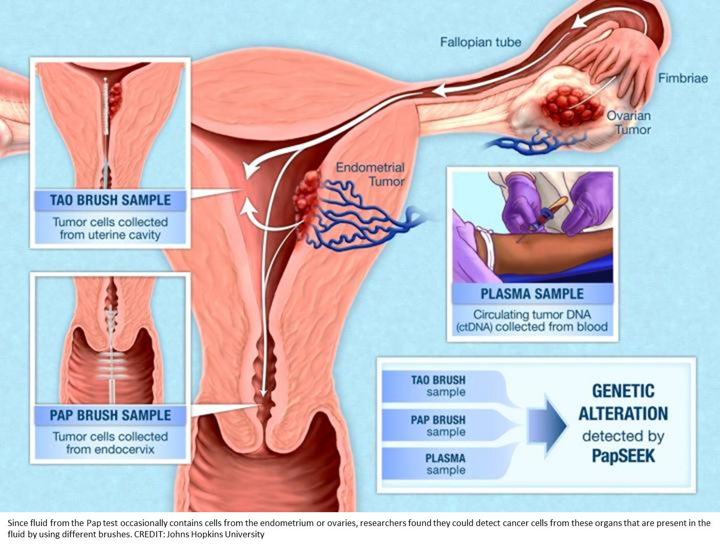 Pap test fluids used in gene-based screening test for two gyn cancers
