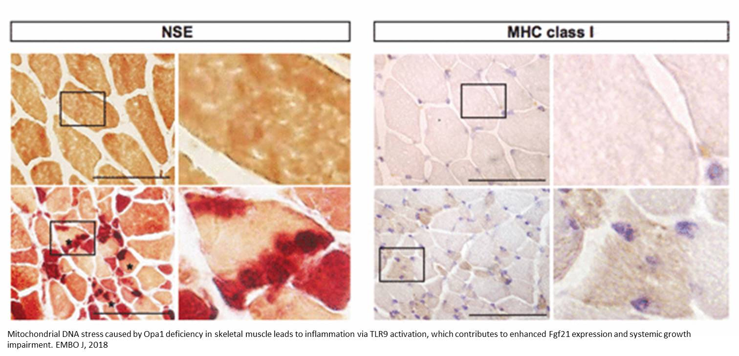 The absence of a single mitochondrial protein causes severe inflammation