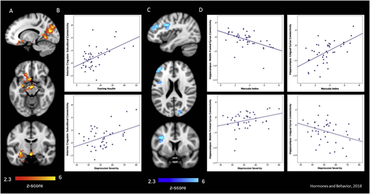 Pediatric obesity, depression connected in the brain