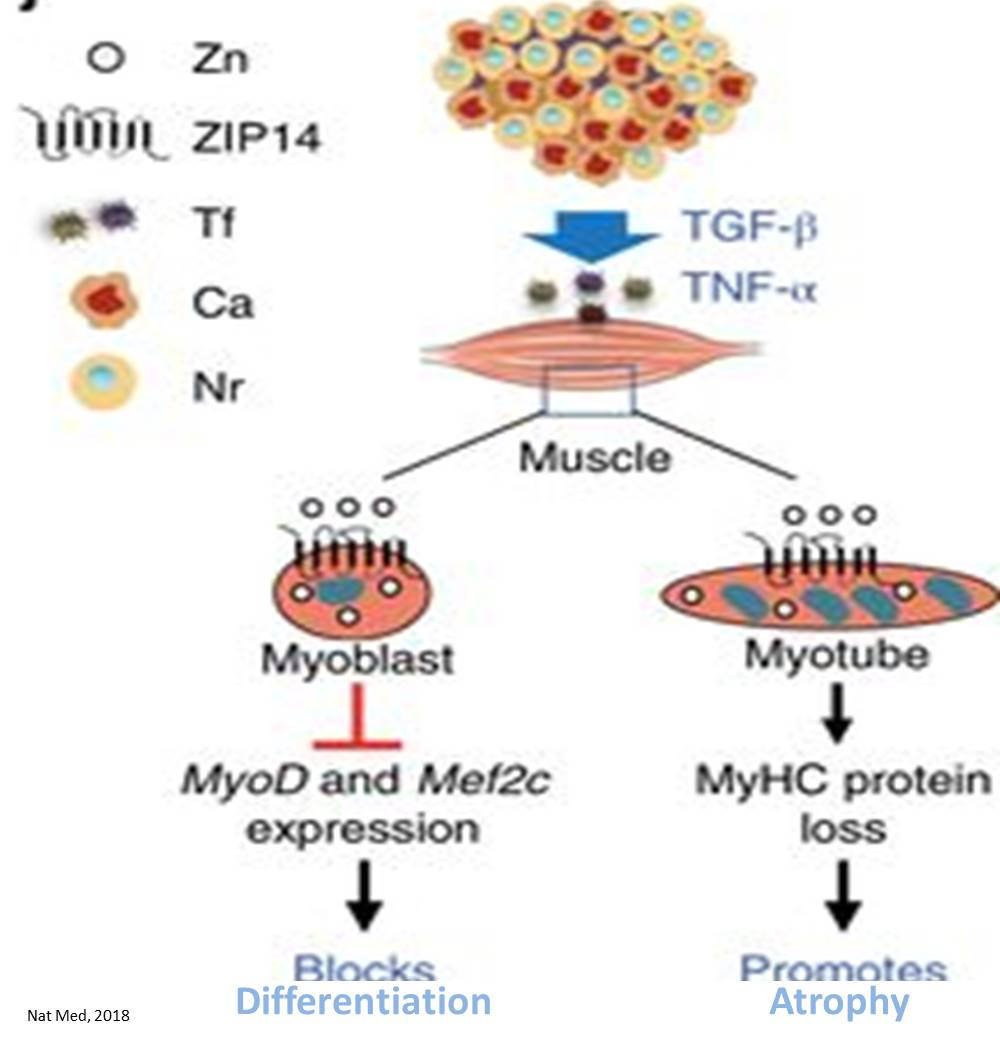 Muscle wasting in cancer attributed to excess zinc in muscles
