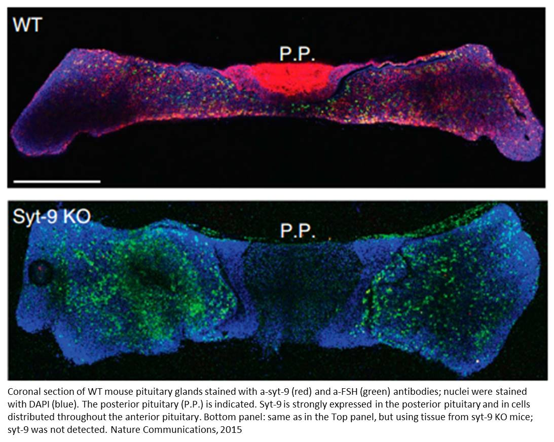 A novel sex difference in reproductive hormone secretion by pituitary gland