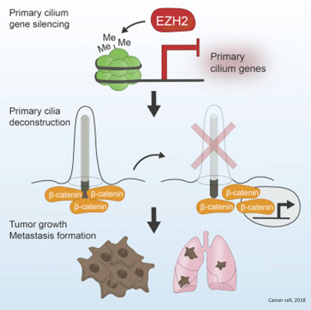 Epigenetic regulation cilia during cancer metastasis