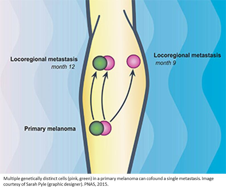 Tracing the lineage of metastasized melanomas