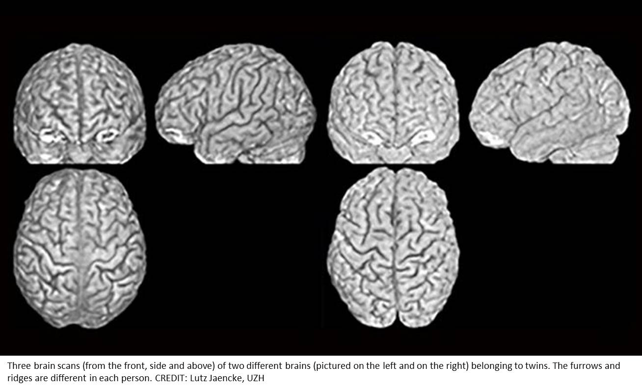 Brain anatomy to identify an individual like finger printing!