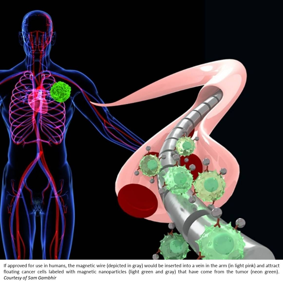 Intravenous magnetic wire to retrieve circulating tumor cells