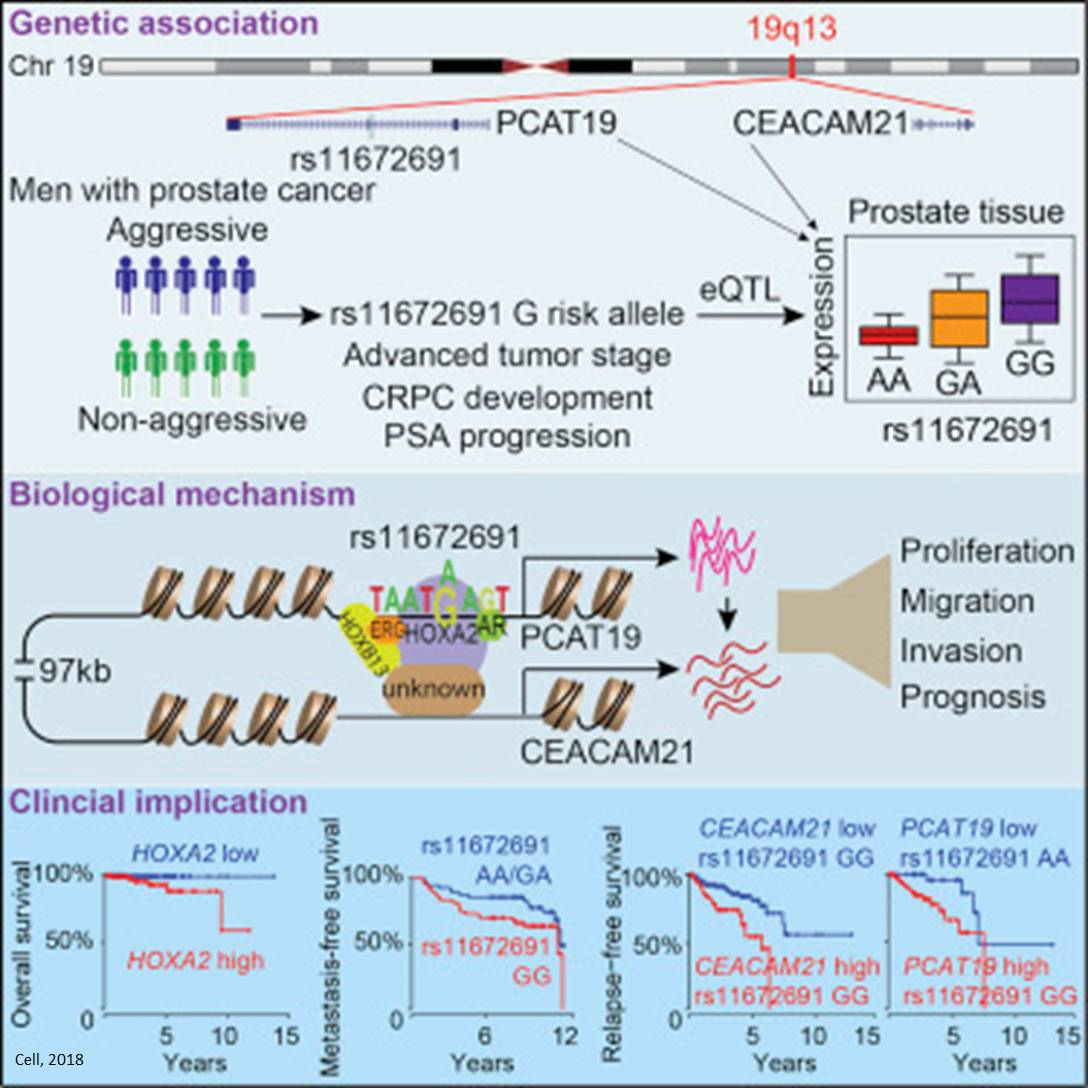 Linking gene mutation to prostate cancer aggressiveness