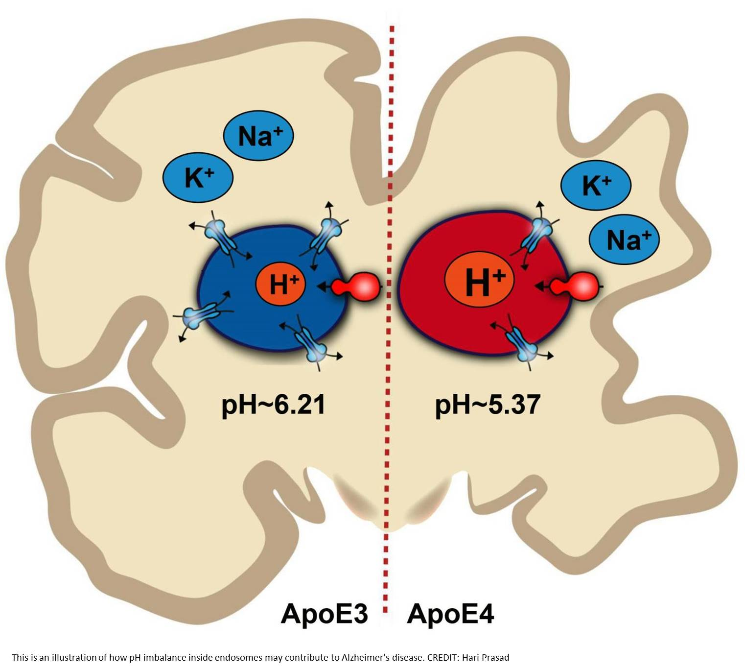 Alzheimer's disease brains have pH imbalance