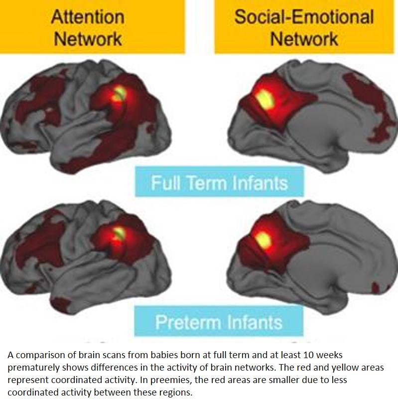 Premature birth appears to weaken brain connections