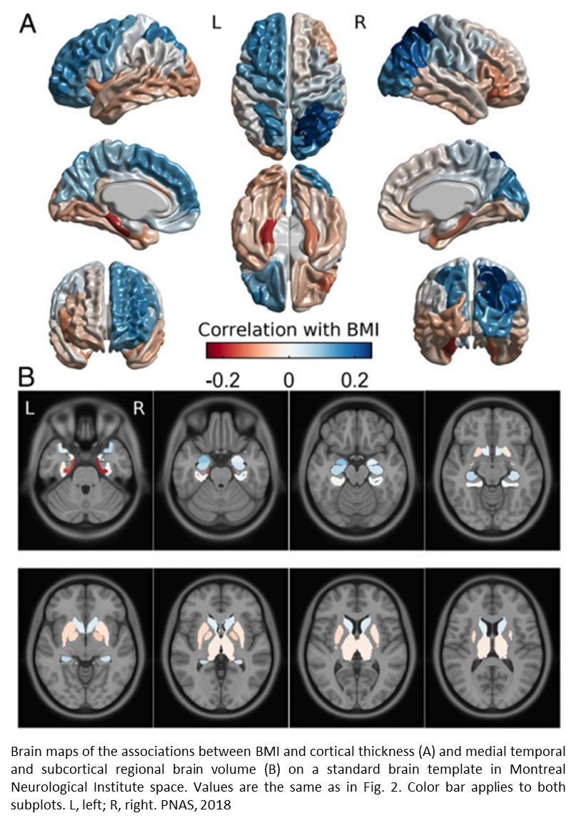 The link between obesity, the brain, and genetics