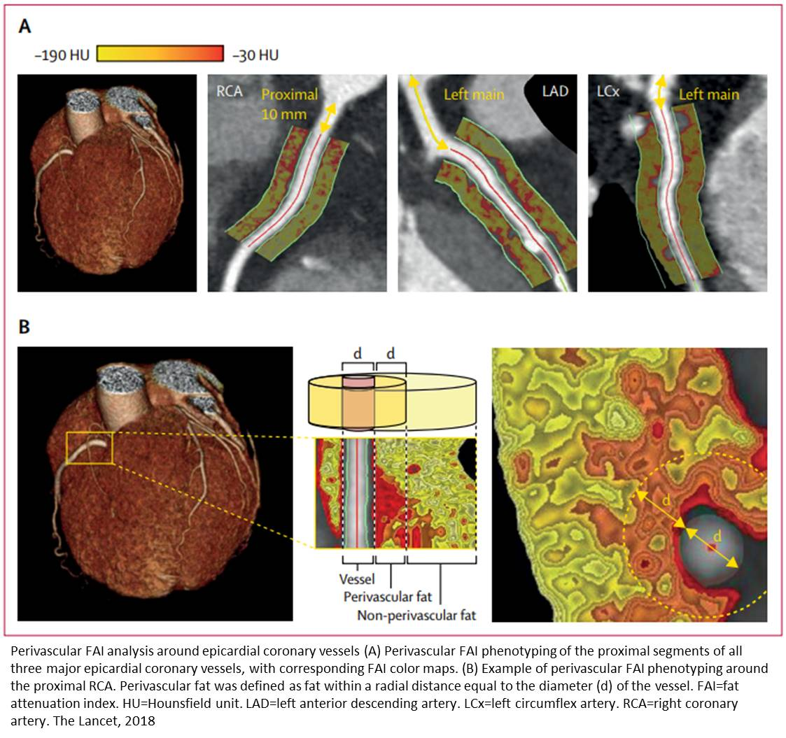 Novel imaging biomarker to help predict coronary inflammation
