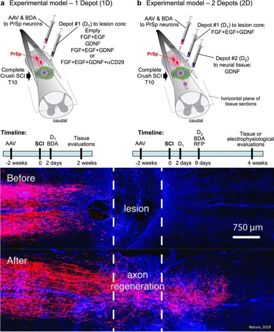 Regrowing and rewiring the spinal cord after injury!