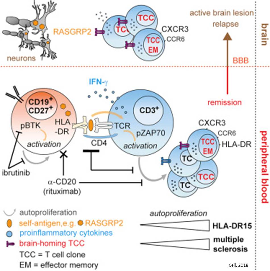 Memory B cells implicated in brain lesions in multiple sclerosis