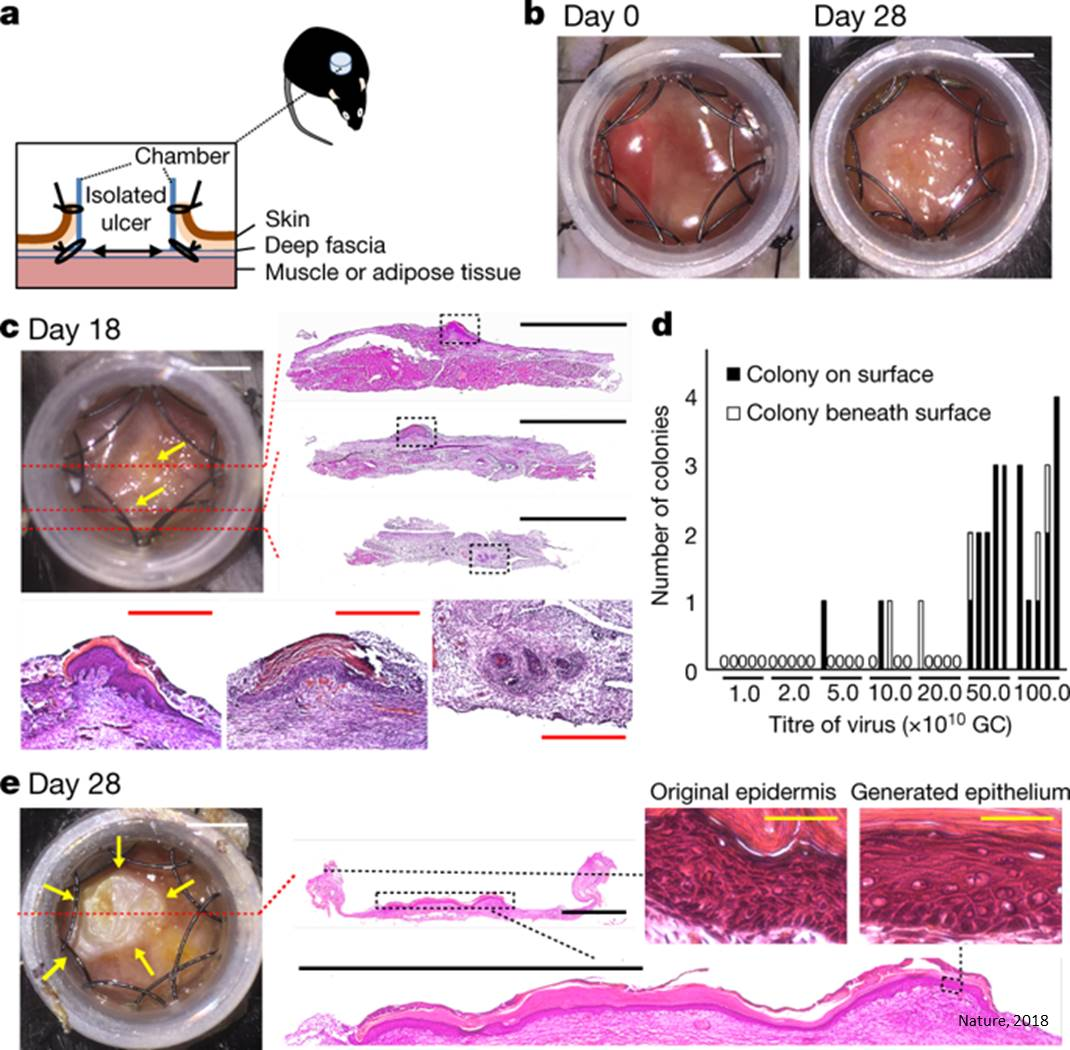 Growing skin on open wounds by reprogramming