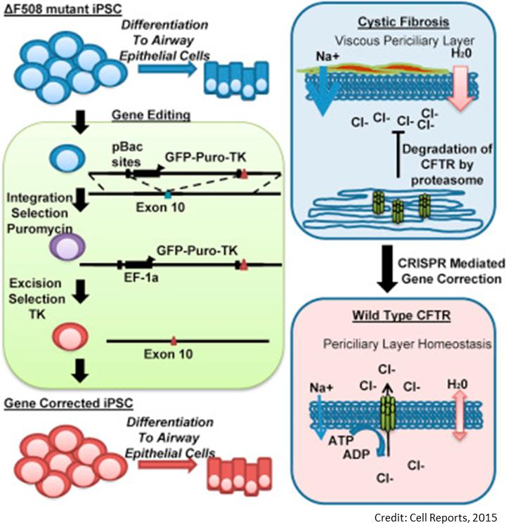 Gene correction for cystic fibrosis in patient stem cells
