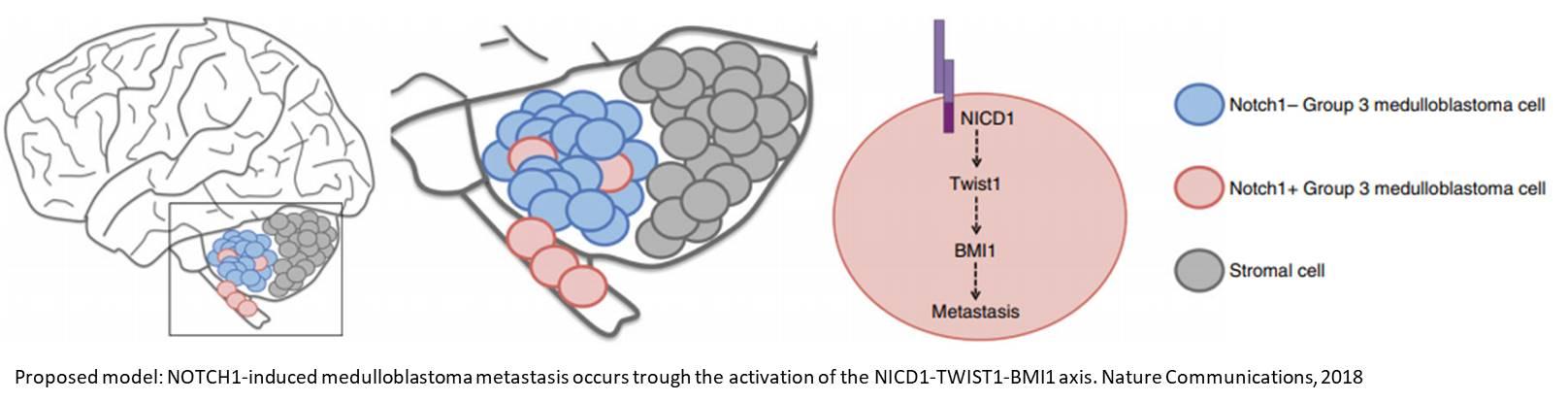 Medulloblastoma metastasis linked to Notch1