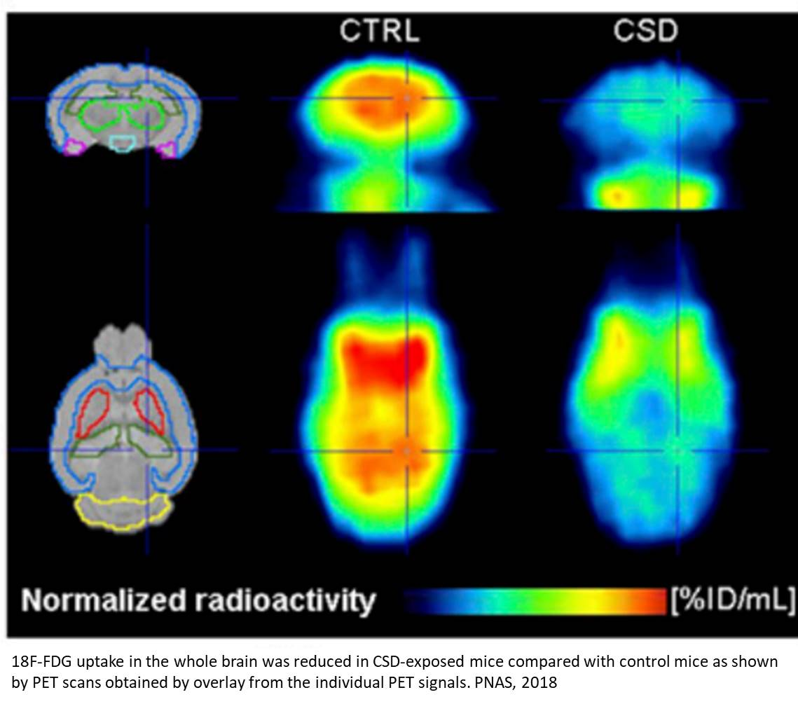 Hyperglycemia from chronic stress may cause spatial memory impairment!
