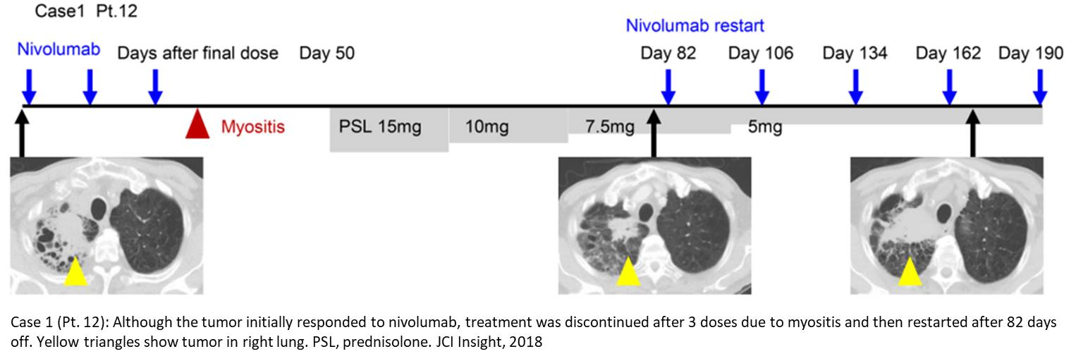 A novel method for monitoring the effect of lung cancer therapy