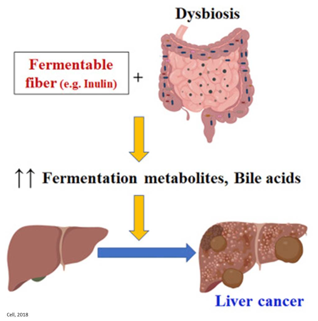 Refined fiber in the processed food implicated in liver cancer via gut bacterial fermentation